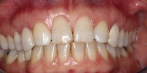 Cosmetische-restauratie-2-after-300x150