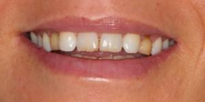 Cosmetische-restauratie-2-before-300x150