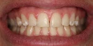 Cosmetische-restauratie-3-after-300x150