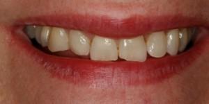 Cosmetische-restauratie-4-before-300x150