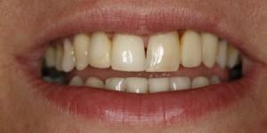 Cosmetische-restauratie-6-after-300x150