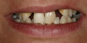 Cosmetische-restauratie-6-before-300x150