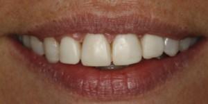 Cosmetische-restauratie-7-after-300x150