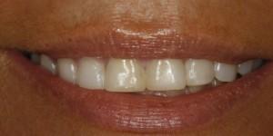 Cosmetische-restauratie-7-before-300x150