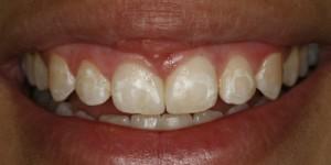 Cosmetische-restauratie-8-after-300x150