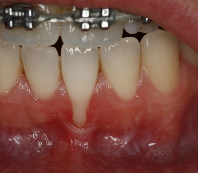 tandvlees-behandelingen