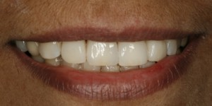 2-cosmetische-facing-3-after-300x150